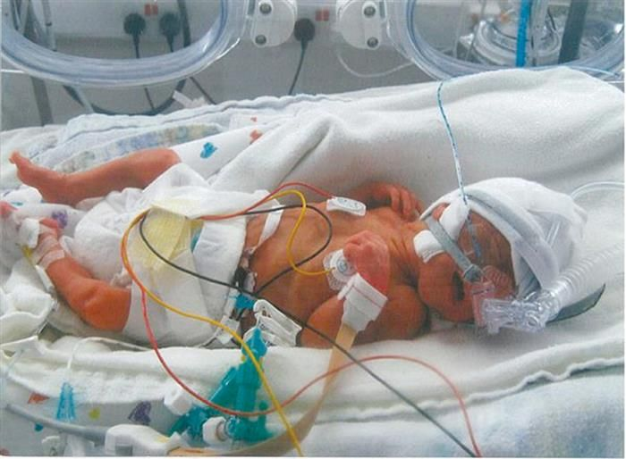 Premature baby is a baby who is born before 37 weeks they thus have