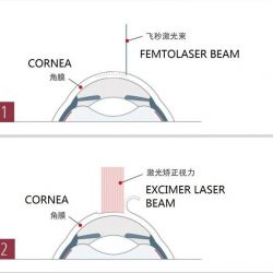 About Lasik: Range of Application