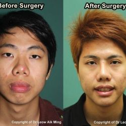 Facial Contouring (Facial Sculpting) Surgery for Asians