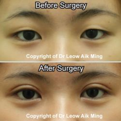 Double Eyelid Surgery (Asian Blepharoplasty)