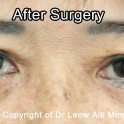 Eye Lift Surgery (Blepharoplasty)