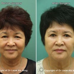 Midface Lift (Cheek Lift)