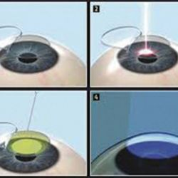 The Lasik Xtra Procedure (LASIK + CROSS LINKAGE (CXL)/RIBOFLAVIN (VITAMIN B2)