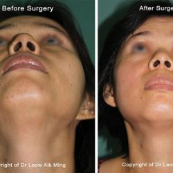 Cheekbone Reduction Surgery (Zygoma Reduction Surgery)