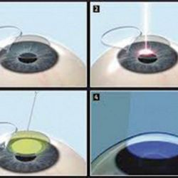 Cross-linking and LASIK (LASIK XTRA)