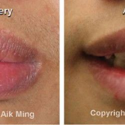 Aesthetic Surgery for Lips (Cheiloplasty)