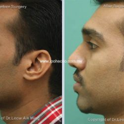 Reduction Rhinoplasty