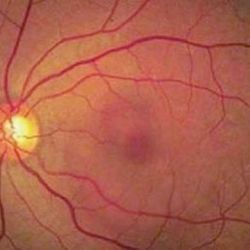 Eye Health: Blurred Vision Due to Stress