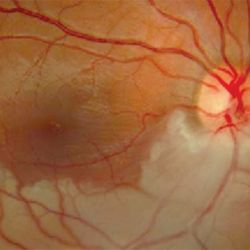 Eye Health:  Strokes in The Eye