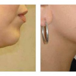 Injectable Fat Removal for Double Chin