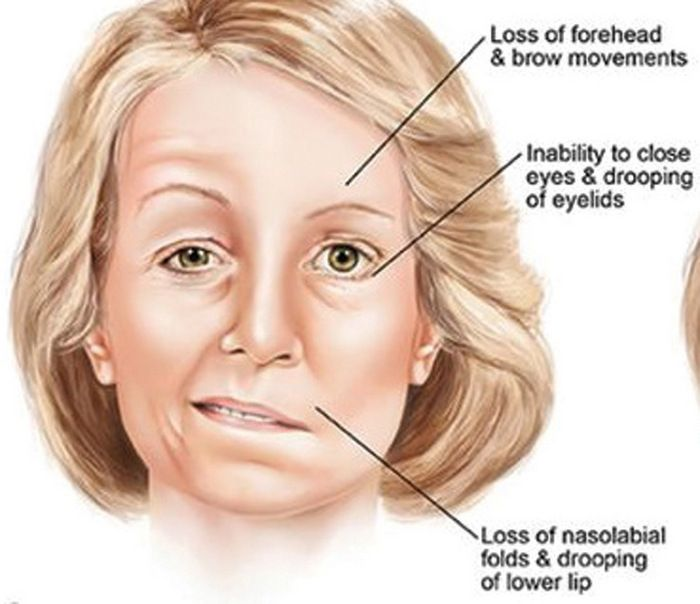 Facial paresis caused by a dentist