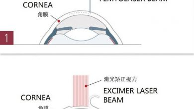 Photo of About Lasik: Range of Application