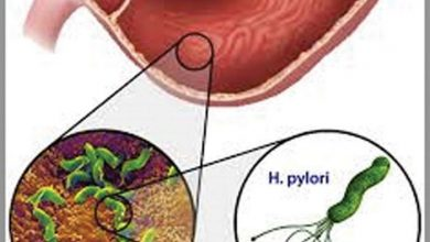 Photo of Helicobacter Pylori Infection