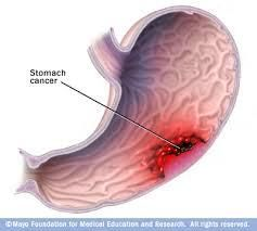 Photo of Stomach Cancer