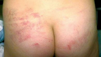 Photo of Physical Abuse of Children