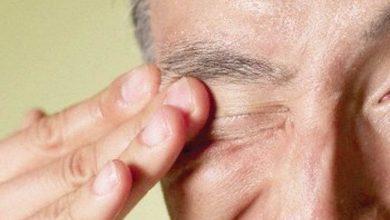 Photo of Eye Allergies