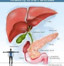 Photo of Pancreatic Cancer