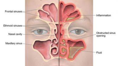 Photo of Sinusitis in Children