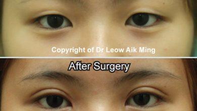 Photo of Double Eyelid Surgery (Asian Blepharoplasty)