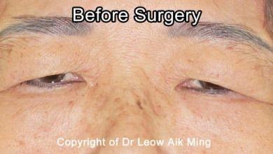 Photo of Eye Lift Surgery (Blepharoplasty)