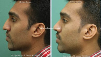 Photo of Reduction Rhinoplasty